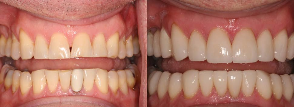 Dan - dental before and after photos
