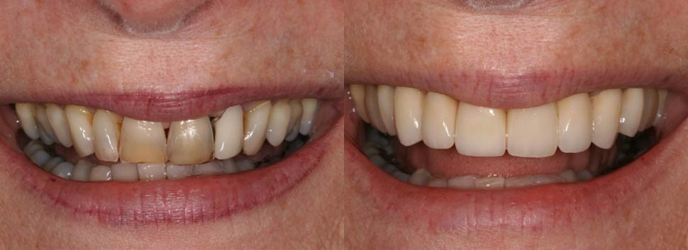 Helyn - dental before and after photos