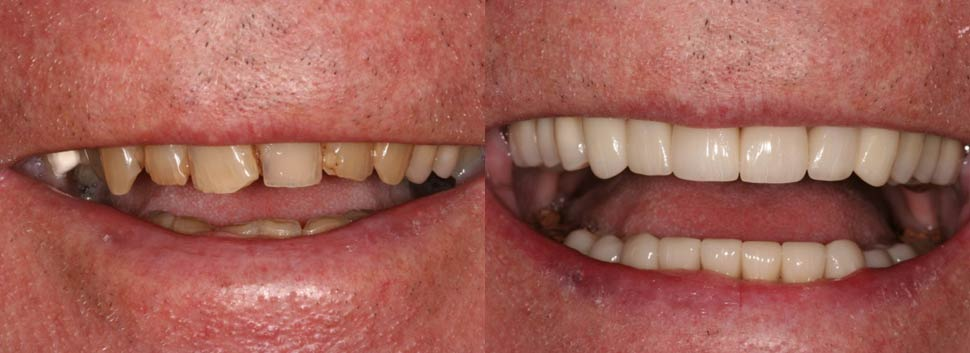 Hugh - dental before and after photos