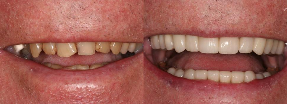 Chesheim Dental Associates in Erdenheim
