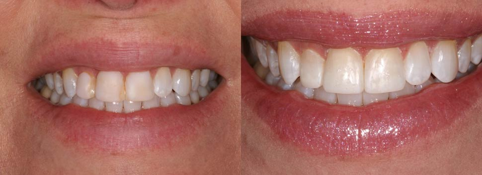 Laura - dental before and after photos