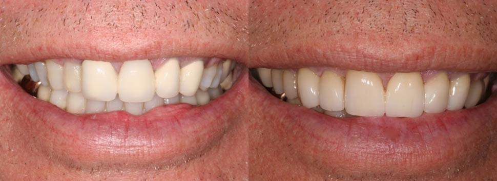 Mike - dental before and after photos
