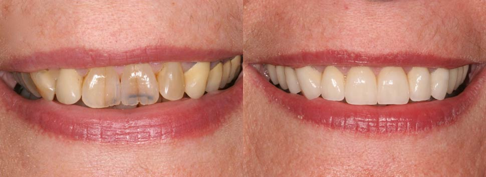 Peggy - dental before and after photos