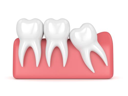 wisdom tooth model